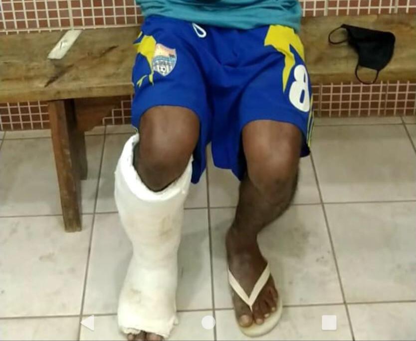 Com falsa fratura na perna, homem é flagrado tentando ingressar na CPP de Palmas com celulares escondidos em gesso